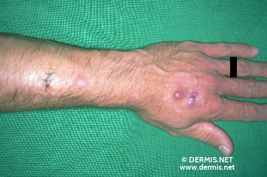 localisation: lower arms diagnosis: Atypical Mycobacterial Infection