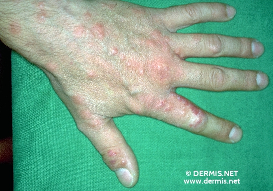 localisation: back of the hands diagnosis: Cimicosis