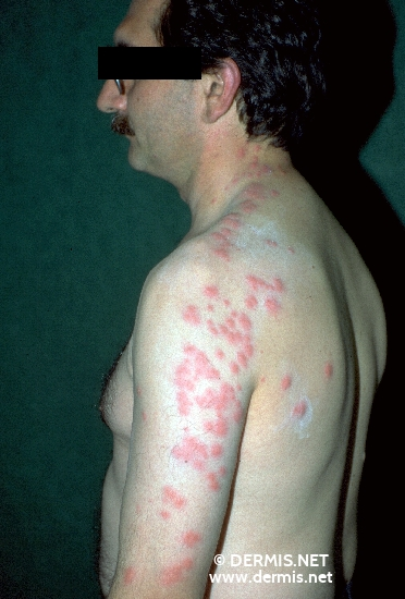 localisation: shoulder region diagnosis: Cimicosis