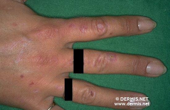 localisation: Handrücken Diagnose: Porphyria cutanea tarda