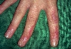 localisation: finger, diagnosis: Incontinentia Pigmenti