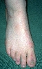 localisation: back of the feet, diagnosis: Incontinentia Pigmenti