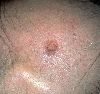 localisation: occipital scalp, diagnosis: Solid-Cystic Basal Cell Carcinoma