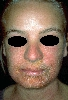 localisation: face, diagnosis: Allergic Contact Dermatitis, Acute & Chronic