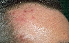 localisation: forehead, diagnosis: Acne Varioliformis Hebra