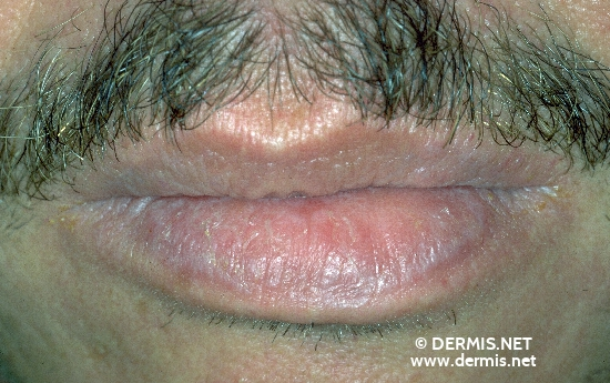 localisation: lower lip diagnosis: Lichen Planus of the Mucosa