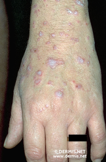 localisation: back of the hands diagnosis: Lichen Planus