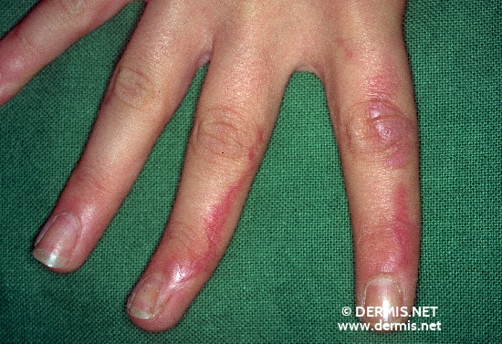 localisation: finger diagnosis: Incontinentia Pigmenti