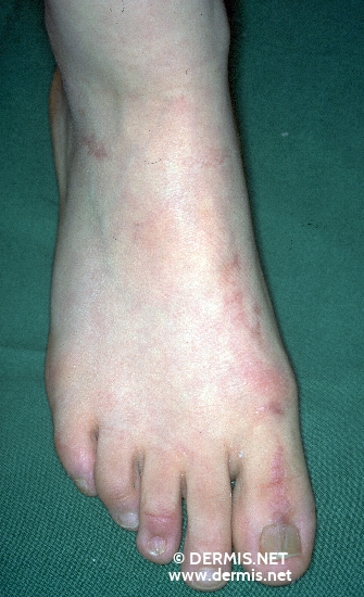 localisation: back of the feet diagnosis: Incontinentia Pigmenti