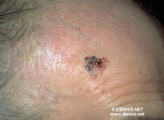 localisation: forehead diagnosis: Solid-Cystic Basal Cell Carcinoma