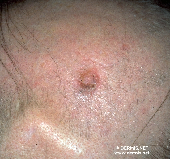 localisation: occipital scalp diagnosis: Solid-Cystic Basal Cell Carcinoma