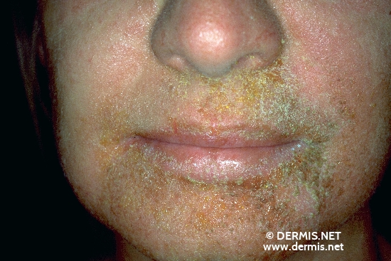 localisation: face diagnosis: Allergic Contact Dermatitis, Acute & Chronic