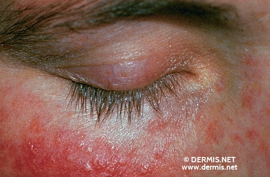 localisation: around the eyes diagnosis: Perioral Dermatitis