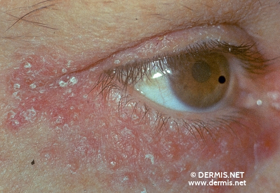 Perioral dermatitis: MedlinePlus Medical Encyclopedia