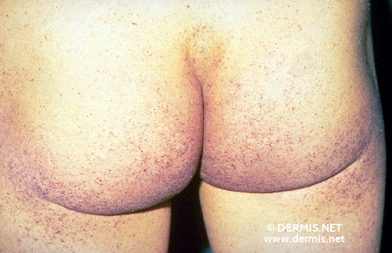 localisation: buttocks diagnosis: Angiokeratoma Corporis Diffusum Fabry
