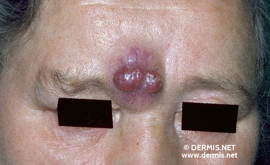 localisation: forehead diagnosis: Merkel Cell Carcinoma