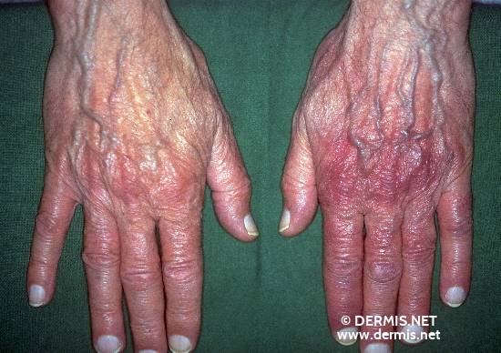 localisation: Handrücken Diagnose: Acrodermatitis chronica atrophicans Herxheimer