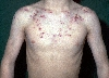 localisation: upper chest, shoulder region, diagnosis: Acne Fulminans