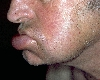 localisation: lower lip, diagnosis: Cheilitis Granulomatosa of Miescher, Melkersson-Rosenthal Syndrome