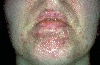 localisation: chin, diagnosis: Gram-negative Folliculitis