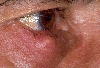 localisation: lower eyelid, diagnosis: Chalazion