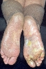localisation: sole, diagnosis: Tinea Pedis, Mycid