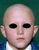 localisation: scalp, eyebrows, eyelids, diagnosis: Alopecia Toxica