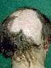 localisation: scalp, diagnosis: Alopecia Areata