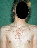 localisation: chest, diagnosis: Acne, Keloidal Scar
