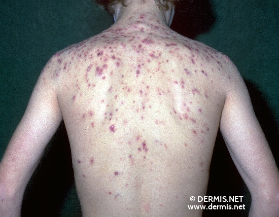 localisation: upper back diagnosis: Acne Fulminans
