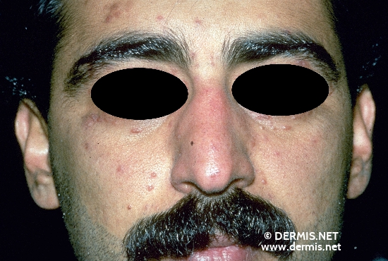 localisation: face diagnosis: Lupus Miliaris Disseminatus (Faciei)