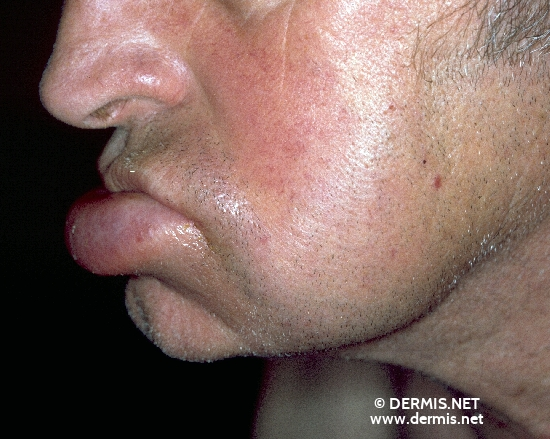 localisation: lower lip diagnosis: Cheilitis Granulomatosa of Miescher Melkersson-Rosenthal Syndrome