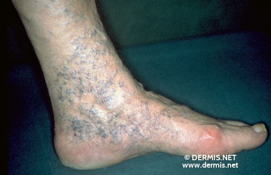 localisation: ankle joint diagnosis: Corona Phlebectatica Chronic Venous Insufficiency, Grade I