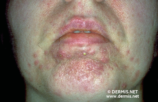 localisation: chin diagnosis: Gram-negative Folliculitis