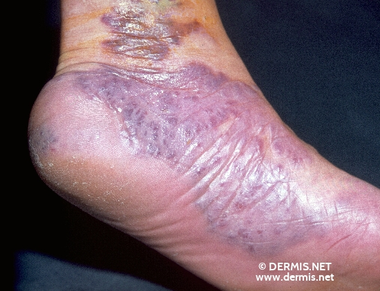 diagnosis: Kaposi's Sarcoma