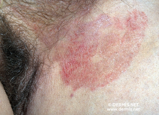 Tinea (Ringworm) Nigra - Dermatology Education