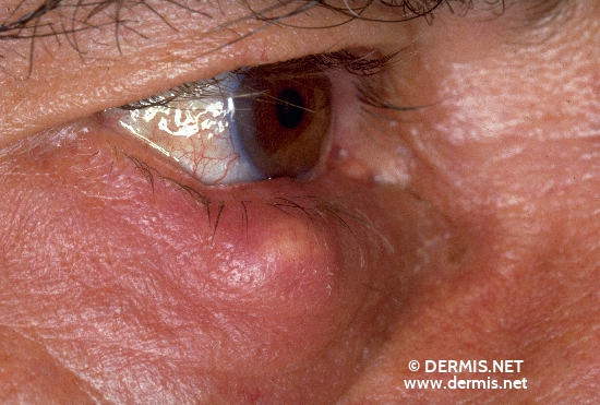 localisation: lower eyelid diagnosis: Chalazion