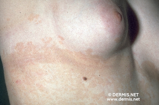 localisation: flank diagnosis: Pityriasis Versicolor
