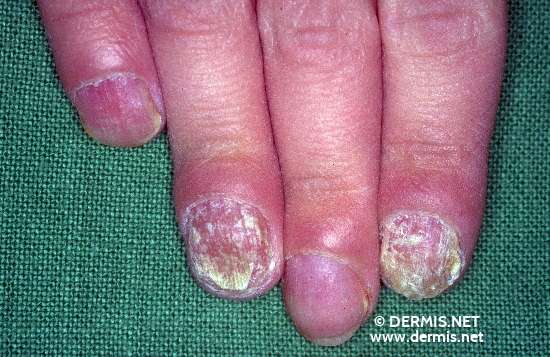 localisation: Subungual (Fingernagel) Nagelplatte (Fingerrnagel) Diagnose: Candidamykose, Nagel und Nagelwall Chronische mukokutane Candidose