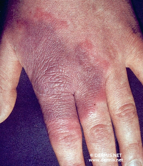 localisation: back of the hands diagnosis: Erysipeloid