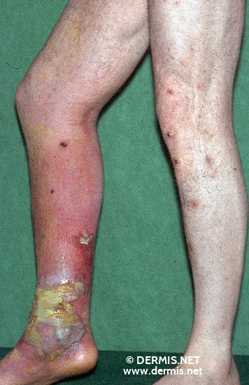 localisation: lower leg diagnosis: Erysipelas Bullosum