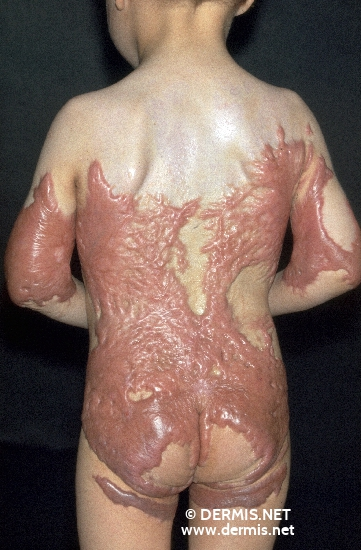 localisation: back diagnosis: Keloids in Scars