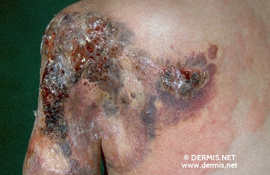 localisation: shoulder region diagnosis: Lymphangiosarcoma