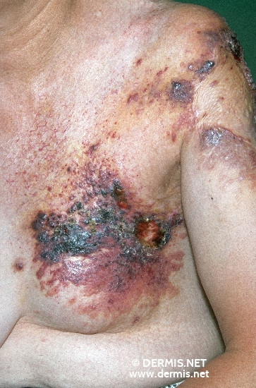 localisation: shoulder region diagnosis: Radiodermatitis, Chronic Lymphangiosarcoma