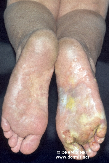 localisation: sole diagnosis: Tinea Pedis Mycid