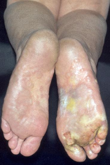 psoriasis palmaris