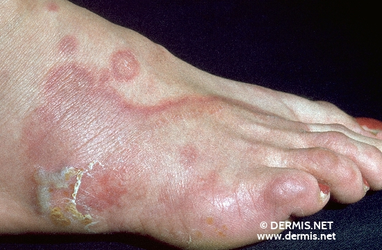 Athlete's Foot & Ringworm Facts - Watch WebMD Video