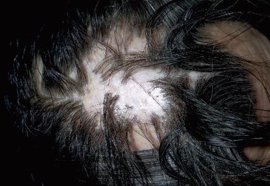 Discoid lupus erythematosus - Wikipedia