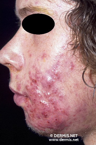 localisation: cheek diagnosis: Acne Conglobata