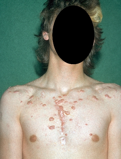 localisation: chest diagnosis: Acne, Keloidal Scar